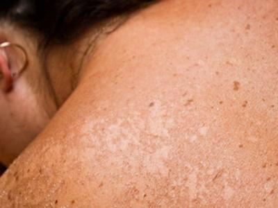 Experto sostiene que la exposición al sol puede generar alteraciones agudas en la piel en un plazo de 20 años.
